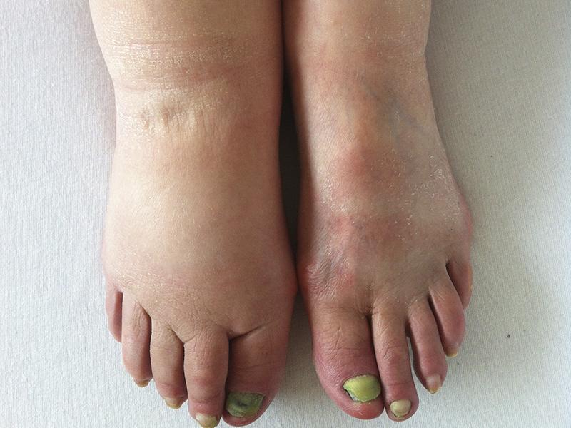 Lipedema é uma doença?